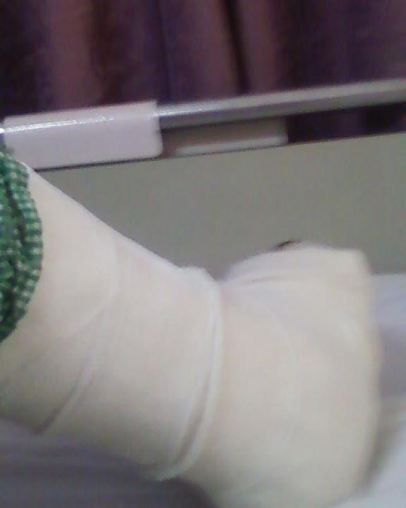 Anni Leg After Surgery